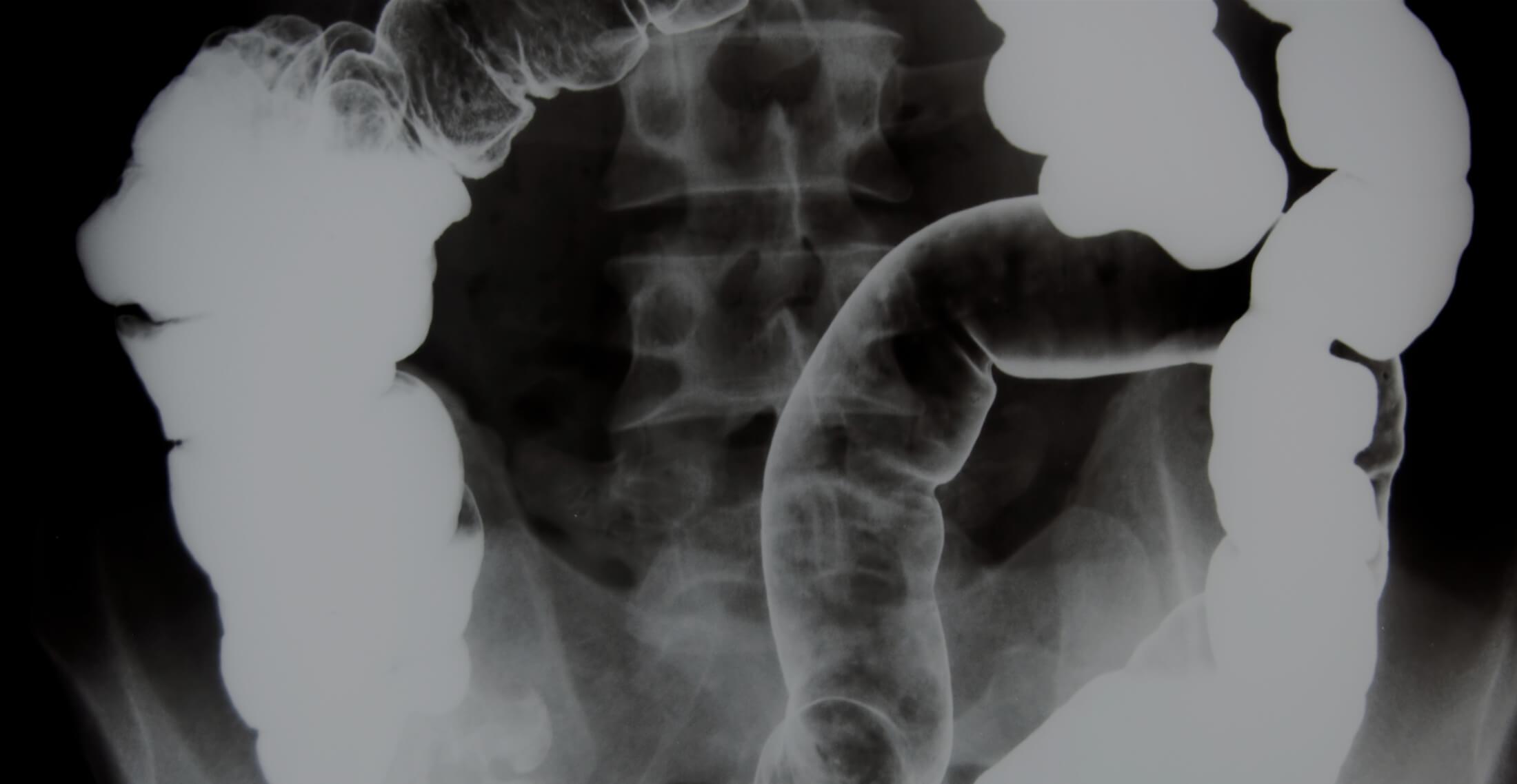 Mikrobiom-Reizdarm-Studie 2019